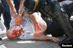 An injured man is attended to by police in Marseille after the match between Russia and England.