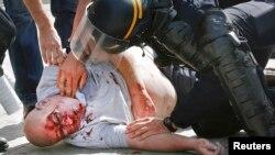 Один із постраждалих під час масової бійки англійських та російських фанантов, Марсель, 11 червня 2015 року