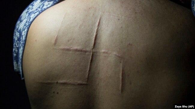 Богдан Сергиец пробыл в плену всего 10 часов в мае 2014 года. Сепаратисты вырезали ему на спине свастику, шрам остался до сих пор. Богдан вспоминает, как его мучители обсуждали, что его не следует выпускать живым, чтобы никто не увидел, что они сделали