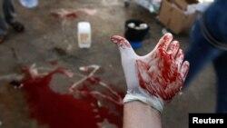 Только за один день в Ливии погибли 7 мирных жителей и еще 18 получили ранения