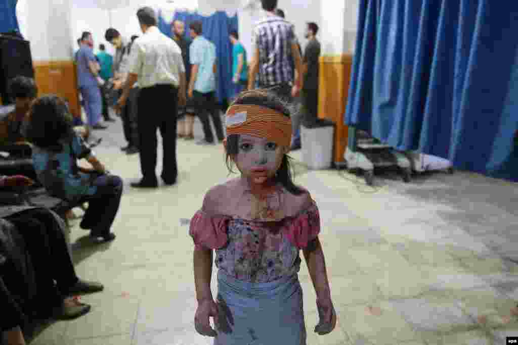 Second Prize Stories in the General News Category was won by Syrian AFP photographer Abd Douman. This image from the series is of a young victim of the Syrian civil war in the city of Douma. (August 22, 2015)