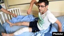 Один из пострадавших в столкновениях в Ереване журналистов. 30 июля 2016 года.