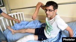 Армянский оператор в больнице в Ереване после ранений, полученных во время насильственного разгона оппозиционной демонстрации, 30 июля 2016 года.