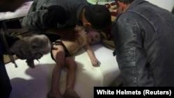 Ребёнок в госпитале города Дума, пострадавший 7 апреля, как утверждают спасатели, от воздействия химического вещества UN Security Council