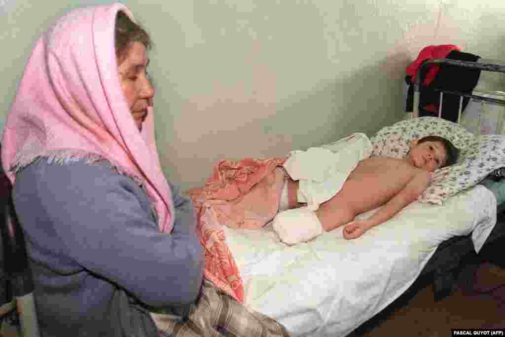 Діти – найбільш беззахисні жертви війни. Восьмирічний хлопчик втратив ногу під час бомбардування. Шпиталь в Урус-Мартані, що за 25 кілометрів на захід від Грозного. 18 січня 1995 року