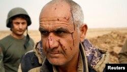 Боєць курдської «пешмерги» після поранення біля міста Башіка, Ірак, 24 жовтня 2016 року