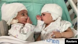 تصویری از دوقلوها پس از عمل جراحی موفقیتآمیز آنها