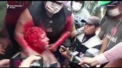 Demonstranti ošišali i polili bojom gradonačelnicu Vinta