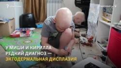 Как живут дети с эктодермальной дисплазией