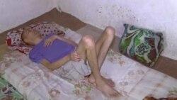 Жителя Бальджувана, 17 лет назад вернувшегося из армии инвалидом, лишили пенсии