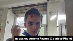 Антон Расин, задержанный и избитый на акции в поддержку Фургала в Хабаровске