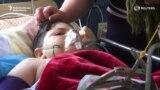 Раненные дети после обстрелов в Карабахе