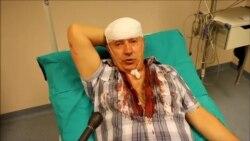 Slavo Kukić pretučen, tvrdi: Motivi napada politički