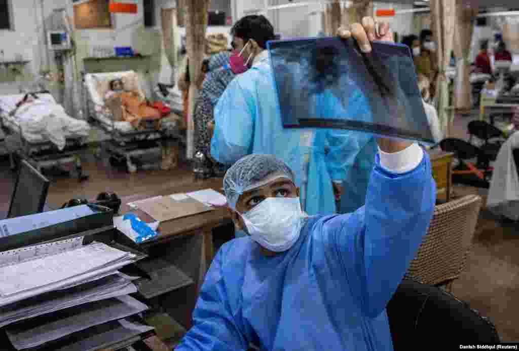 """Рохан Агарвал, 26-годишен лекар, гледа во рентген снимка на белите дробови на пациент со ковид-19, во една болница во Њу Делхи. """"Ако пациентот има треска и знам дека е болен, но не му е потребен кислород, не можам да го примам. Тоа е критериум. Луѓето умираат на улица без кислород. Значи, ние не примаме луѓе на кои не им требаат кислород"""", изјави Агарвал за агенцијата Ројтерс и додава: """"Вториот избор што сум принуден да го направам е ако имам помлада и постара личност на која ѝ е потребен кислород, а имам само еден кревет на интензивна нега. Во моментов нема простор за емоции, дека тоа е нечиј татко. Младите треба да се спасат""""."""