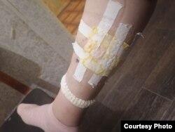 Виктории делали уже несколько операций на ноге